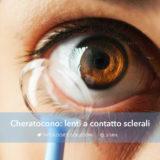 cheratocono: lenti a contatto sclerali